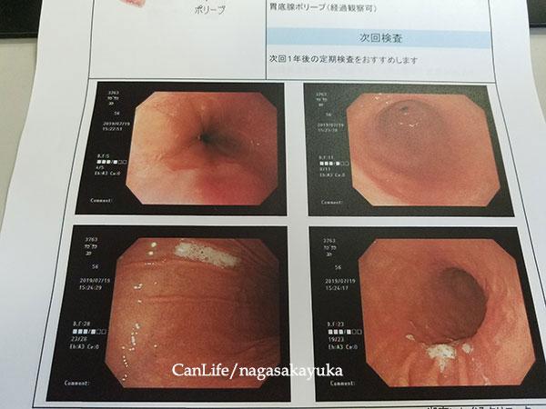 胃の内部写真